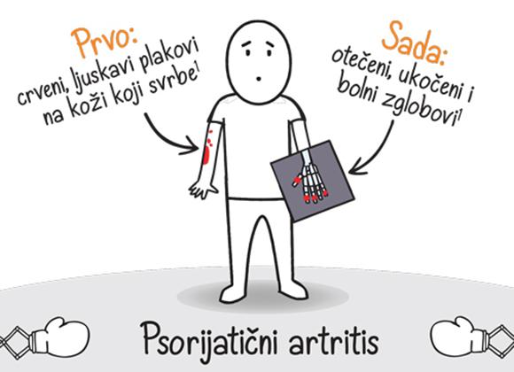 Nauči o PsA – Psorijatičnom artritisu